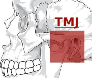 TMJ Jaw Pain Therapy